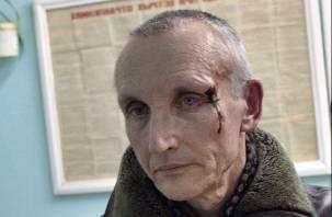 «Пообщался с народом». Стали известны подробности нападения на депутата в Смоленской области