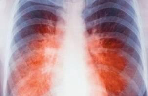 На Смоленщине растет число больных с инфекцией ВИЧ/туберкулез