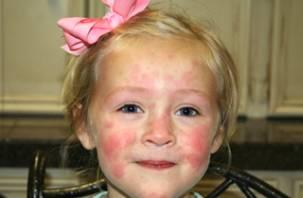 Смоленские медики получили международный сертификат по лечению крапивницы