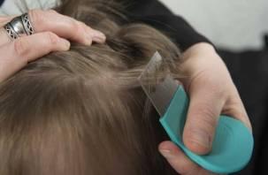 400 смоленских детей заразились педикулезом