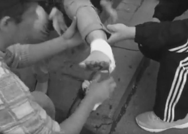 В Смоленске сняли на видео последствия падения забора на девочку