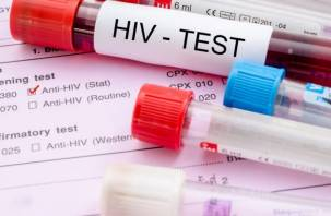 Ученые впервые «очистили» ДНК от ВИЧ