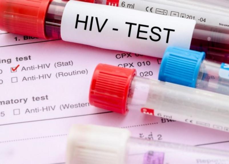 Россиянам предложат пройти тест на ВИЧ прямо на рабочем месте
