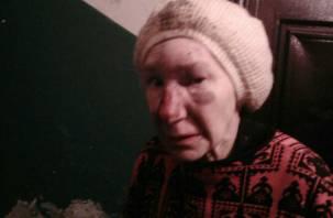 Соцсети: в Смоленске до потери памяти избили пенсионерку