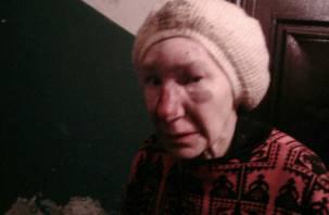 Установлена личность избитой в Смоленске пенсионерки