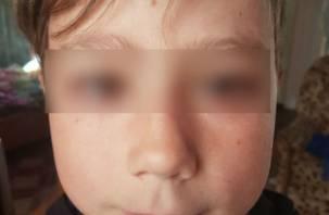 «Кинули палкой в глаз»:смоленскому мальчику срочно нужна помощь