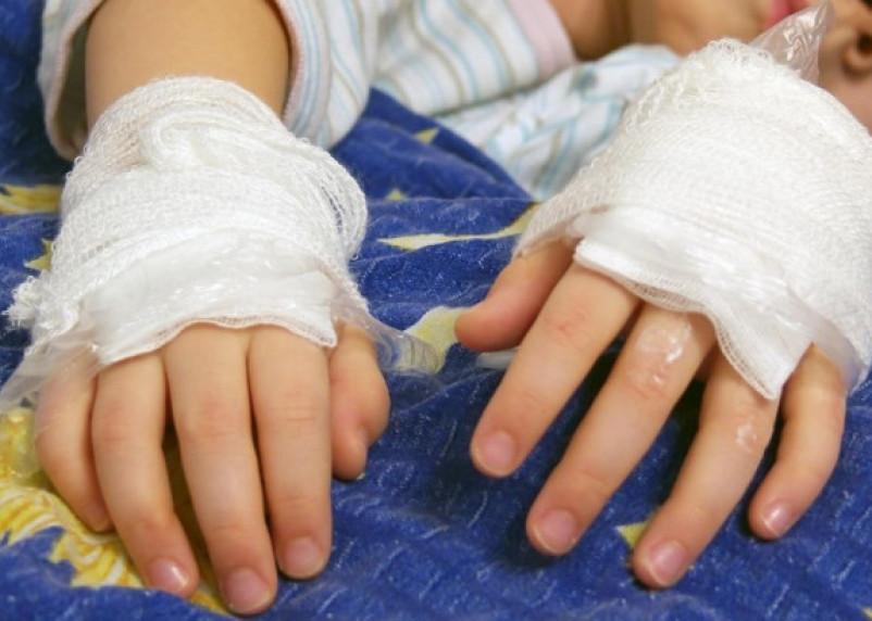 Смоленской малышке с 70% ожогами тела требуется помощь