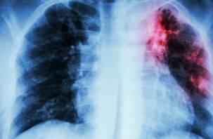Создано новое лекарство для лечения туберкулеза