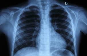 Ученые назвали причины рака легких у тех, кто никогда не курил