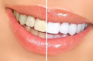 Врачи назвали не совсем обычную причину желтизны зубов
