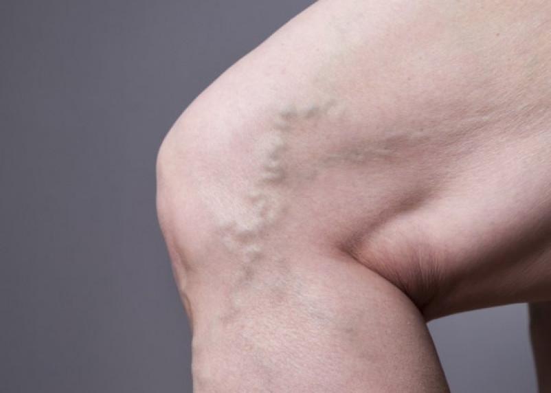 Хирург-флеболог рассказал об опасности варикоза и способах предотвращения последствий