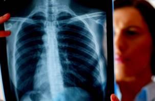 Не дышать! Медики рассказали, что все чаще провоцирует рак легких