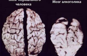 Алкоголь вредит мужскому мозгу