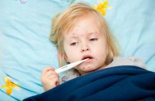 Семь смолян заразились корью, в том числе двое детей