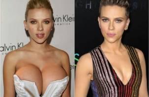 В России наметился новый тренд: дамы бросились уменьшать грудь
