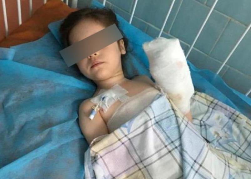 Московские врачи вылечили смоленскую девочку после сильных ожогов