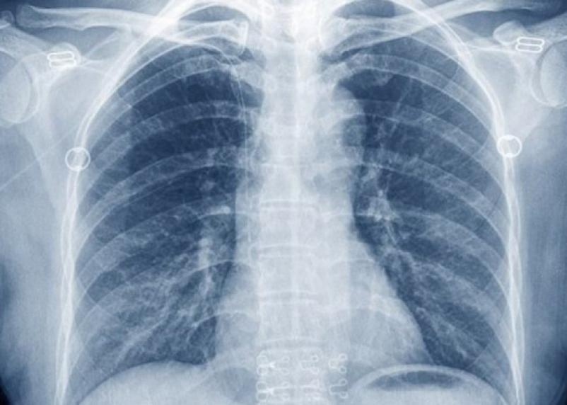 Меньше доверяйте. Рентген грудной клетки не видит каждый 4-й рак легких