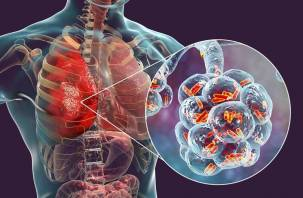 Патологоанатом рассказала, что находят в телах умерших от коронавируса
