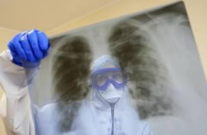В Роспотребнадзоре назвали наиболее подверженных пневмонии россиян