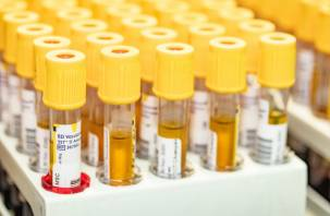 Привитым «Эпиваккороной» нужны специальные тесты на антитела