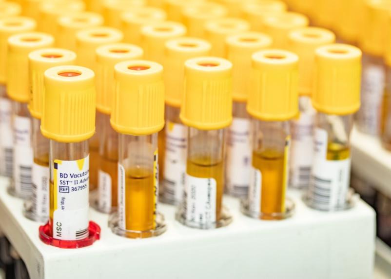 Смоленский Роспотребнадзор обновил данные по коронавирусу на 17 апреля
