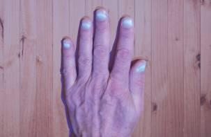 У переболевших коронавирусом светятся ногти